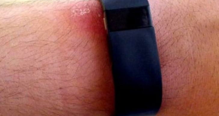 Fitbit Force 2 demanded following recall