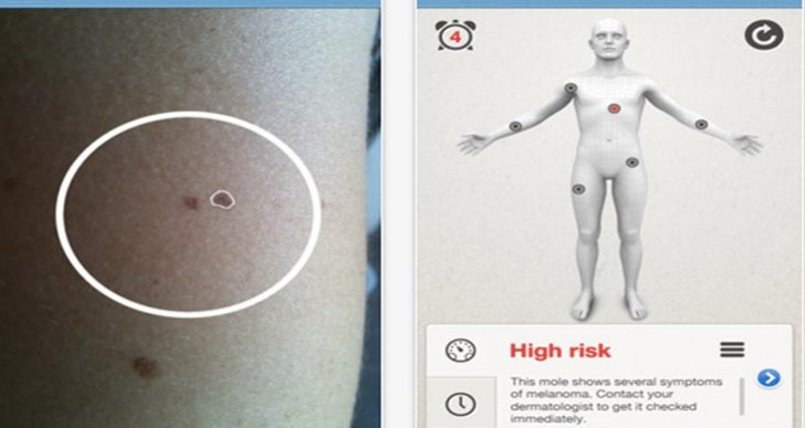 Mole Detect Pro iPhone app: Unearthing early signs of Melanoma