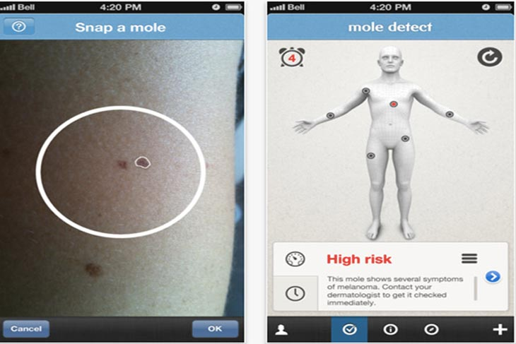 Mole-Detect-Pro-iPhone-app